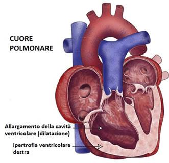 Adenoidismo e danni cardiopolmonari